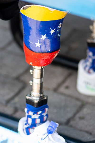 St. Thomas University student Franklin Mejias Castellano, who was left handicapped by an infection acquired during a trip to Florida from his native Venezuela when he was 12,  has decorated his prosthetics with the Venezuelan and American flags.
